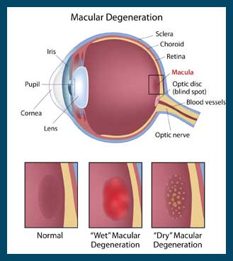 Macular Degenration in Reno